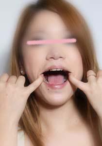 みさとちゃんの歯 「いえ、痛くないですから・・・」 ホントに?