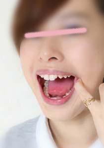 素人アンリちゃんの歯 カリエスフリー 染め出ししてみた
