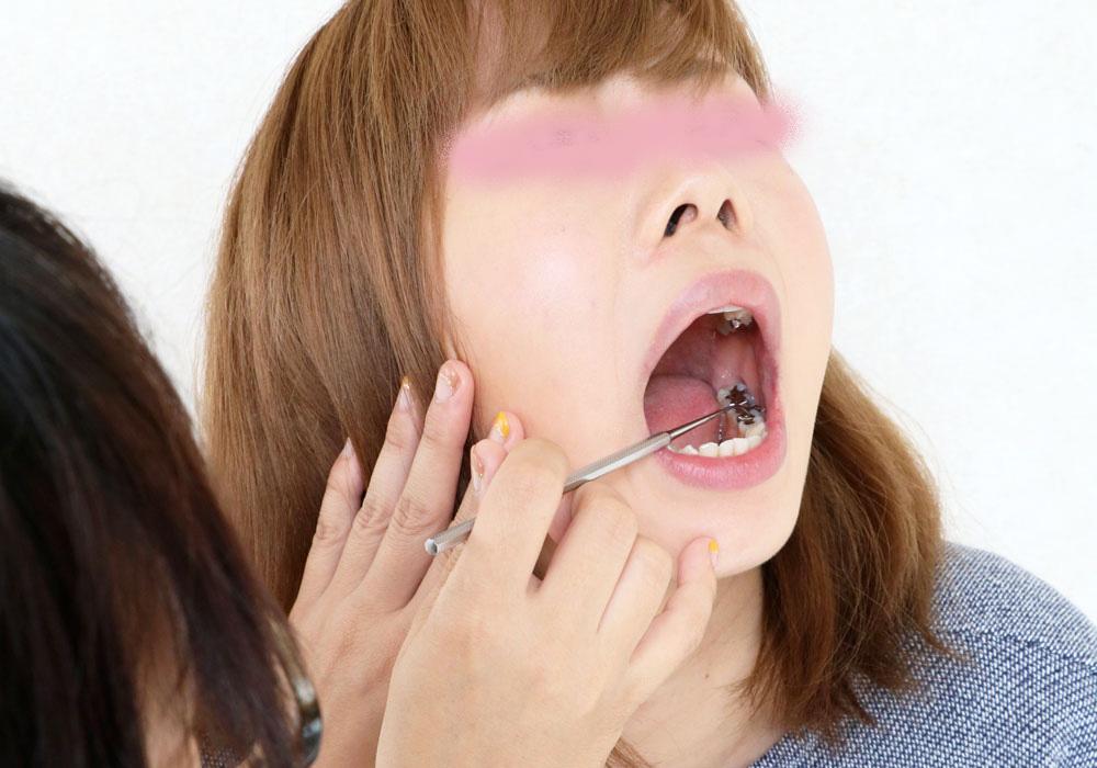 綾子ちゃんの歯。インレー脱離後、1年放置!立派なクラウン娘に♪