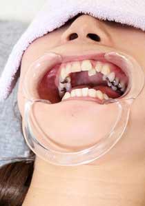 美由紀の歯 痛くならないと行かないです