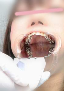 Gcolle未公開!壮絶銀歯娘さきちゃんの歯 クリーニングと歯型