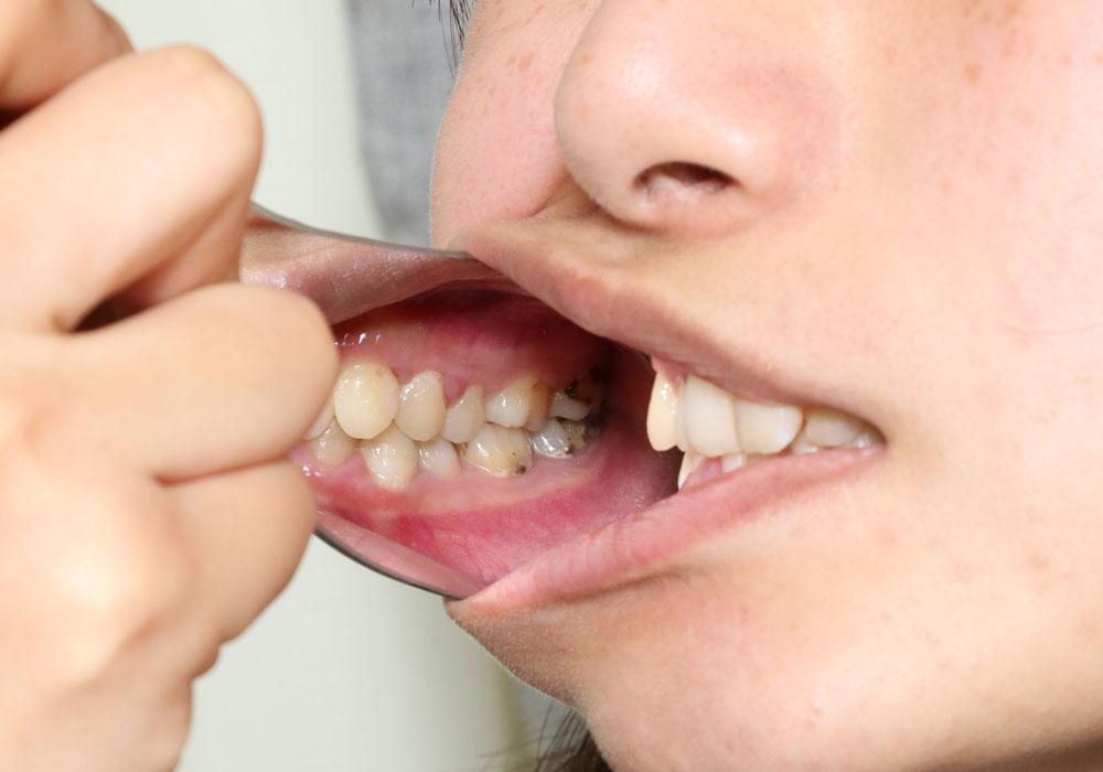 セール中!里穂ちゃん再び 虫歯発見しました・・・