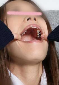 セール中!紗知ちゃんの歯 もっと銀歯あるじゃん!?