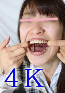 4K動画リマスター版  格安お試し 千秋ちゃんの口内観察 歯磨き