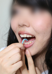 優衣ちゃんの歯★親知らず要注意 歯磨きデンタルフロス