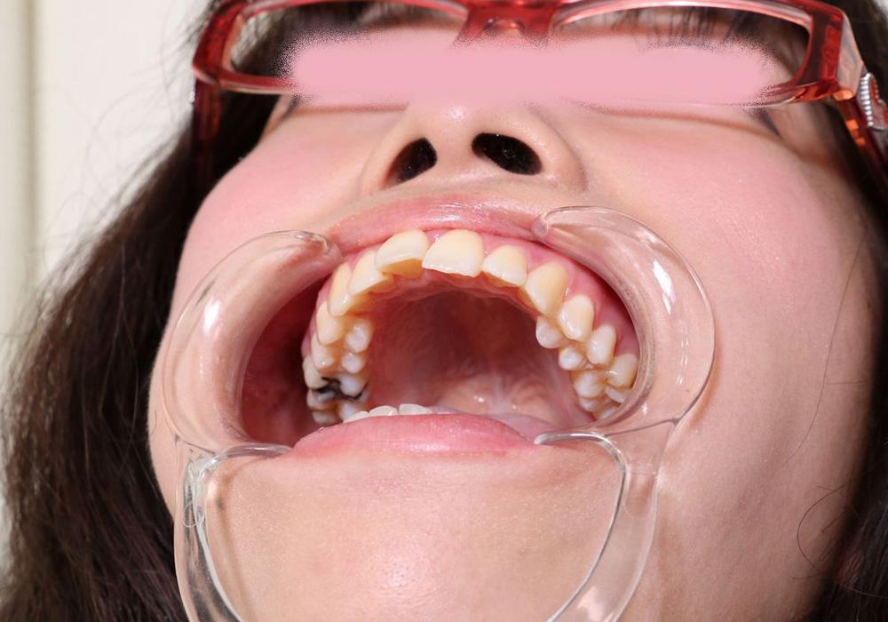 ミクちゃんの歯 インレーと治療痕とデンタルフロス