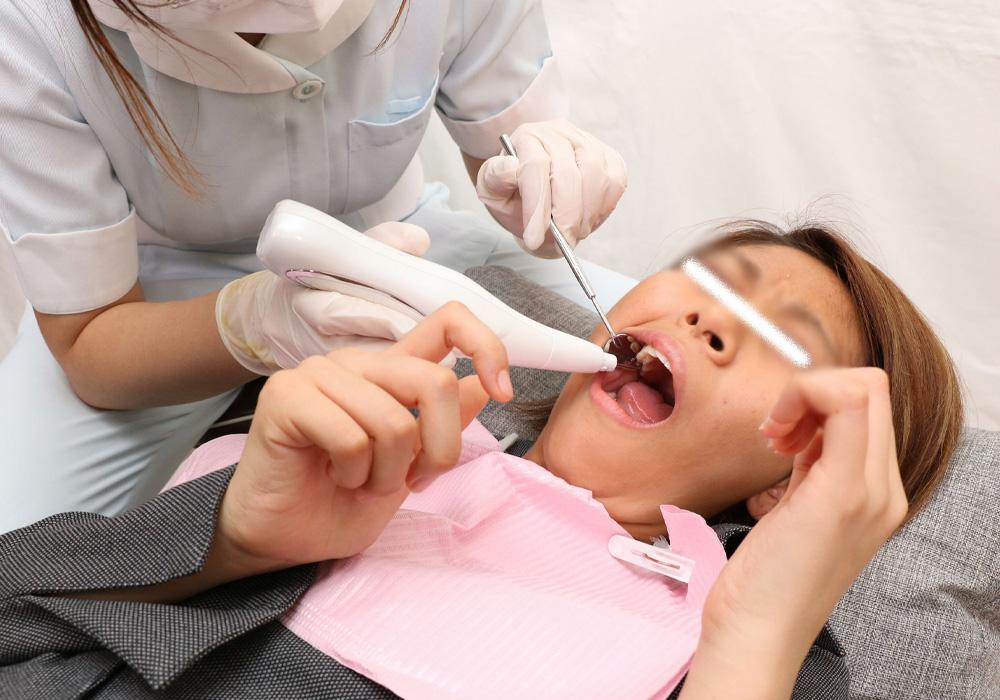 がっつりクラウン娘 亜理紗ちゃんの虫歯をスケーラーで