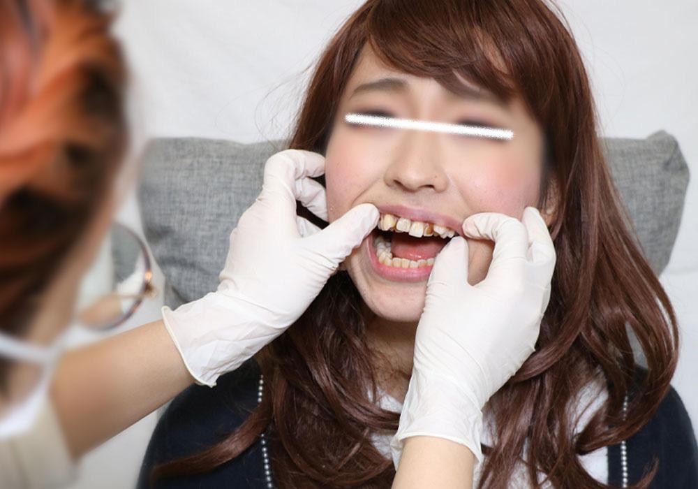 ロリ可愛いさくらちゃんの汚歯 前編 神経しんじゃった!