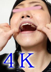 遥ちゃんの歯 この黒いのは何ですか? 4K動画