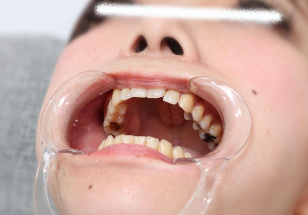 Teeth of Chiaki Toothless Amalgam Silver Crowns Silver Teet Rotting Teeth Dental Fetish