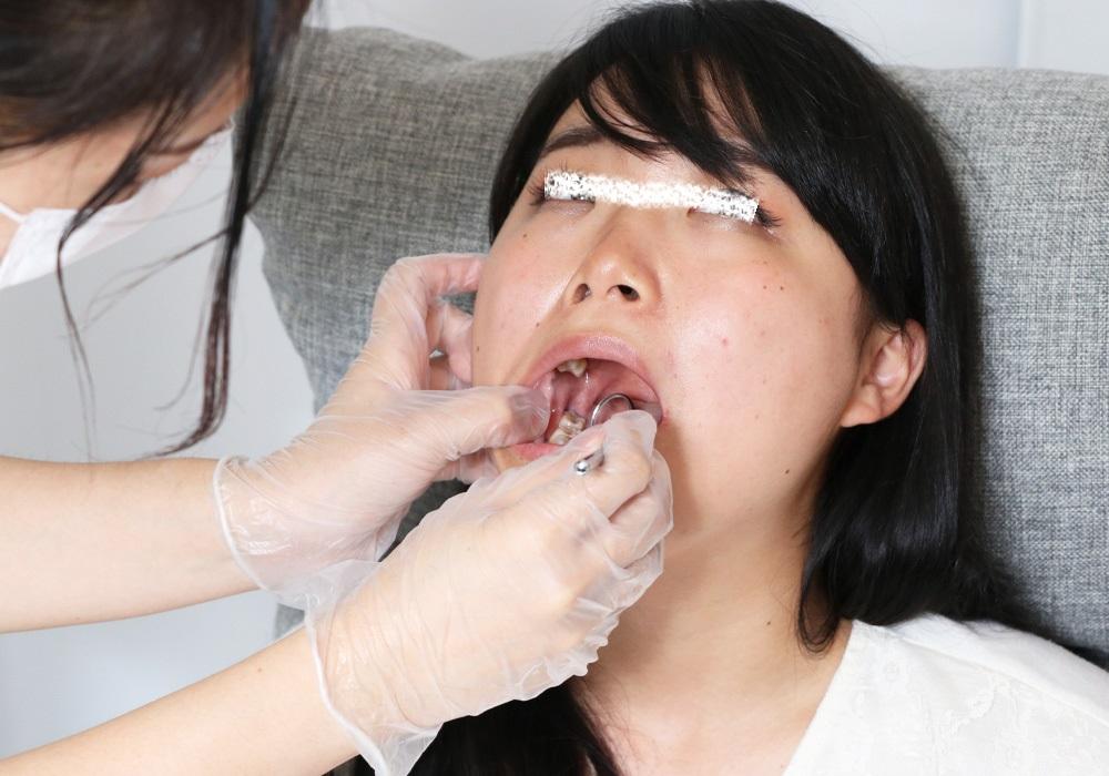 あきちゃんの歯 自らの現実を見て愕然!