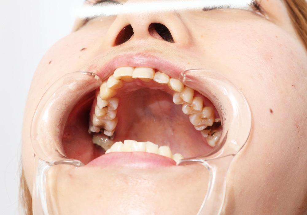 真菜ちゃんの歯 画像データ46枚