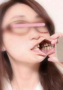 まどかさん 矯正歴 前歯に差し歯アリ