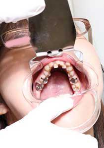 弥生ちゃんは元歯科助手なのに立派な銀歯が何本も