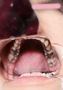 セール中!葵ちゃんの歯 虫歯と銀歯のオンパレード!