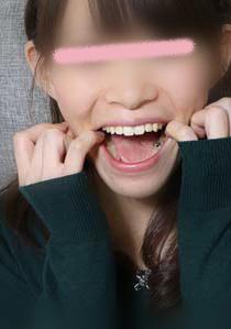 朱莉ちゃんの歯 脱離歴あり。奥歯怪しくない?