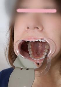 由香ちゃんの白い歯★意識は高いけど治療痕が