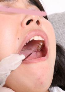 つかさちゃん、歯医者でのトラウマを語る 激痛
