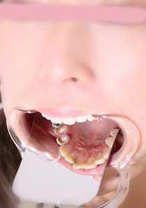 由梨ちゃんの放置歯 いつも治療は続きません!
