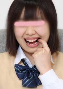美紀ちゃんの歯 あっちこっちに問題有り 前編