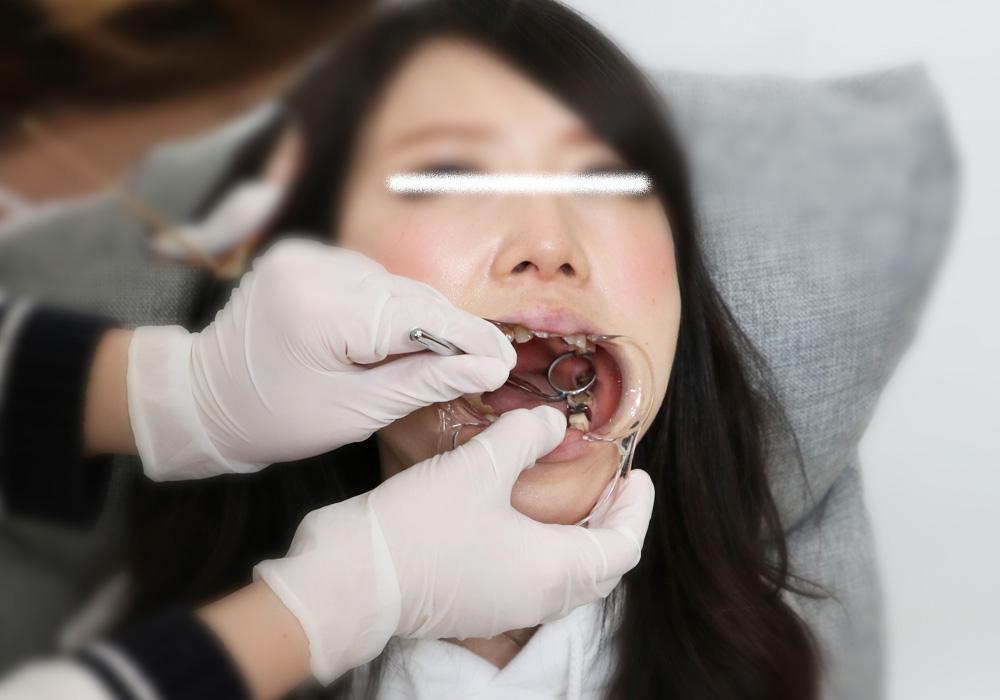 すみれちゃんの銀歯と欠損  「なんだかんだ忙しくて・・・」 前編