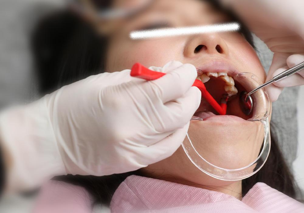 すみれちゃんの銀歯と欠損 後編 「歯医者行ったら全部銀歯に・・・」