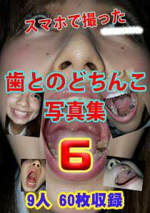 スマホで撮った歯とのどちんこ写真集6 9人 60枚